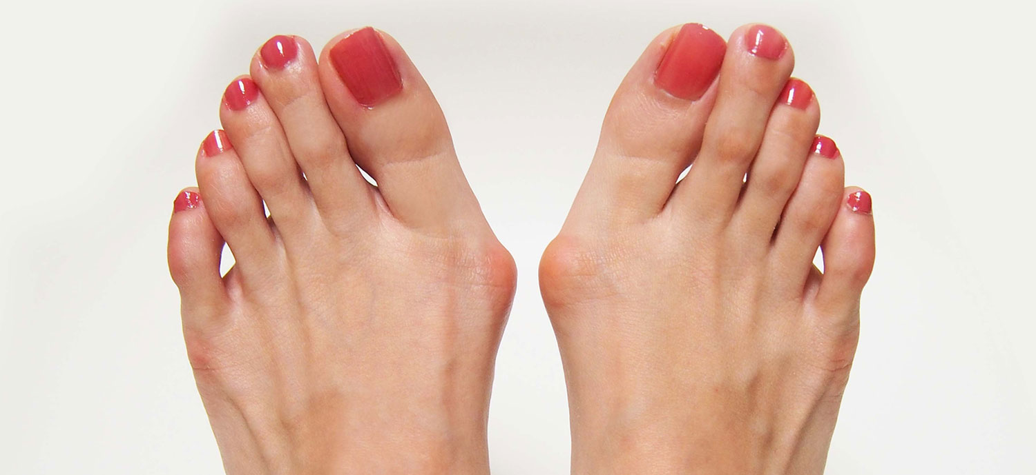 Bunion Surgerry Clinical Trial