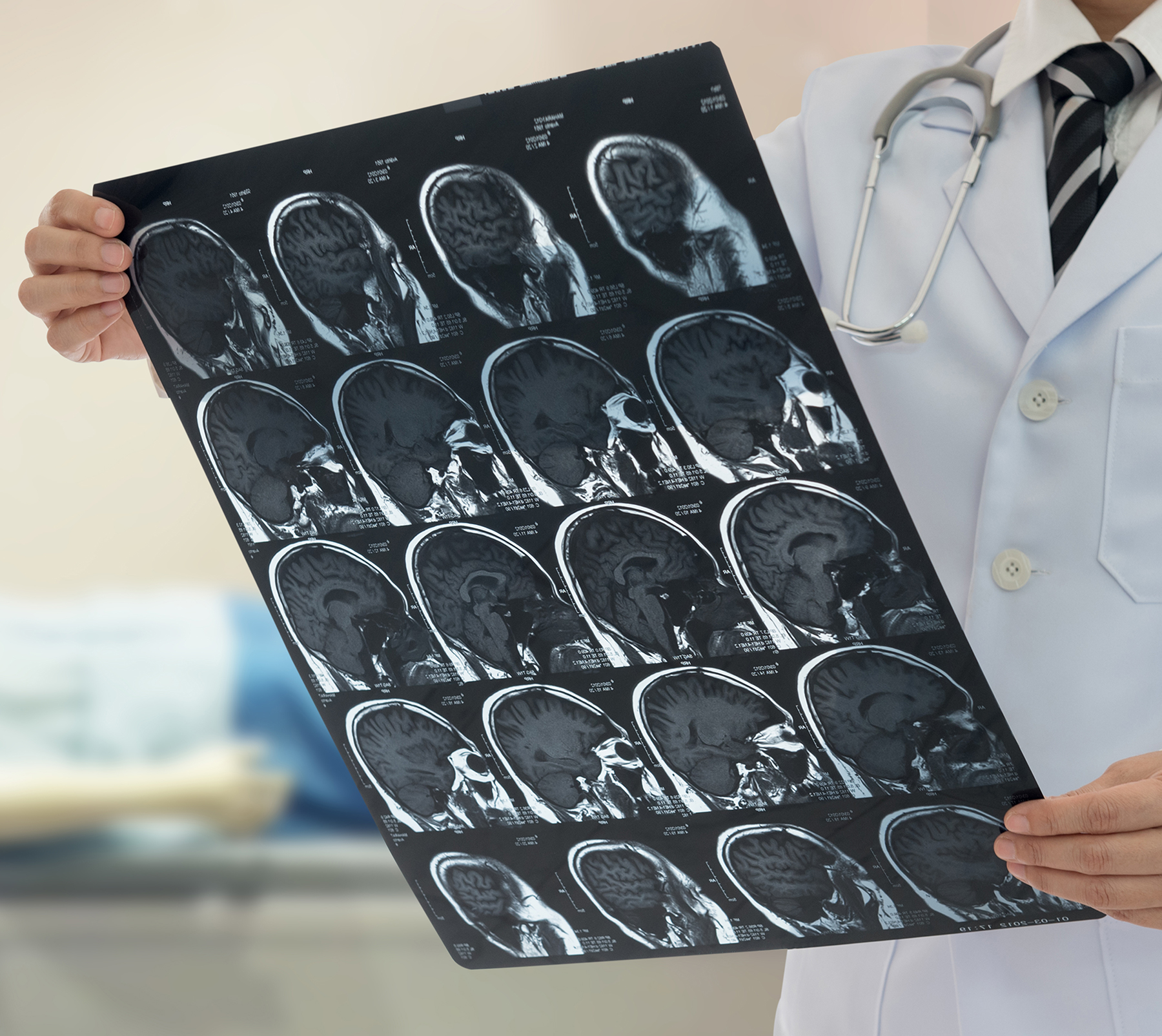 Neurologist in lab coat looking over the results of a patient's brain scan.